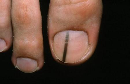 Заболевания кожи фото Ваш домашний дерматолог 100